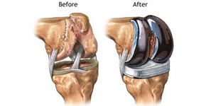 Total Knee Joint Replacement, Thumbay Medical Tourism in UAE